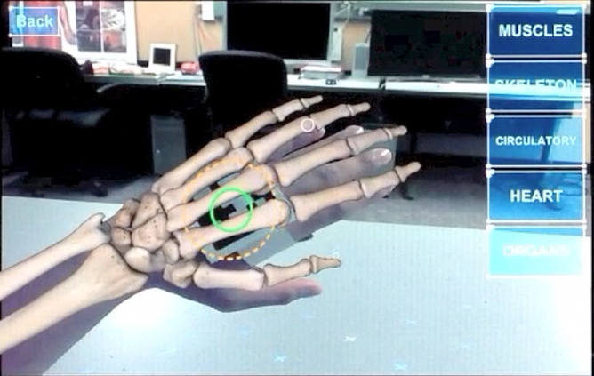 Augmented reality skeleton on hand